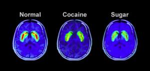 brain_on_sugar-300x143.jpg